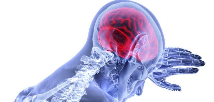 strokevården