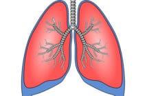 lungtransplantationer