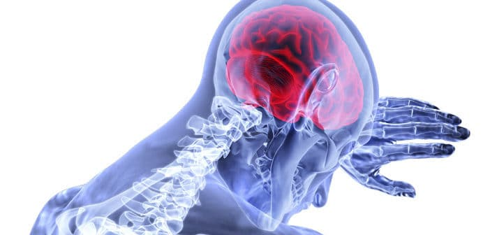 Tidig upptäckt av stroke genom AI?